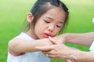 Bệnh viêm khớp still là gì? Một số triệu chứng của bệnh