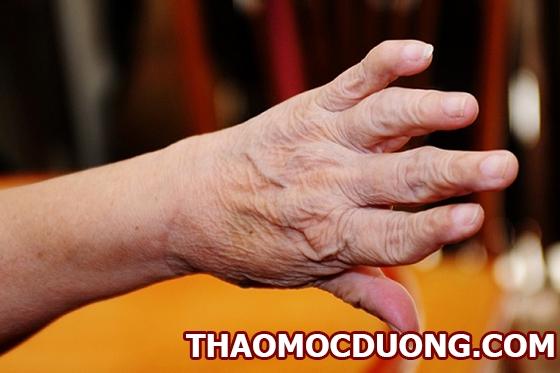 Các thể loại bệnh viêm khớp nhiễm khuẩn và triệu chứng của bệnh 1