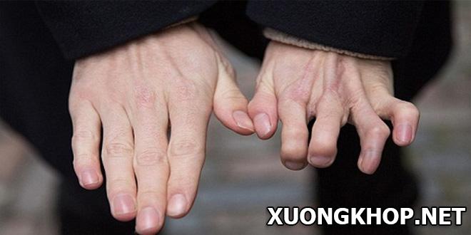 Cảnh báo biến chứng nguy hiểm từ bệnh viêm khớp ngón tay trỏ.