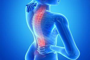 Chấn thương gãy xương cột sống và cách phòng ngừa gãy xương cột sống