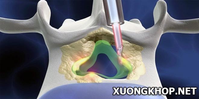 Điều trị bệnh thoát vị đĩa đệm cột sống bằng tia laser