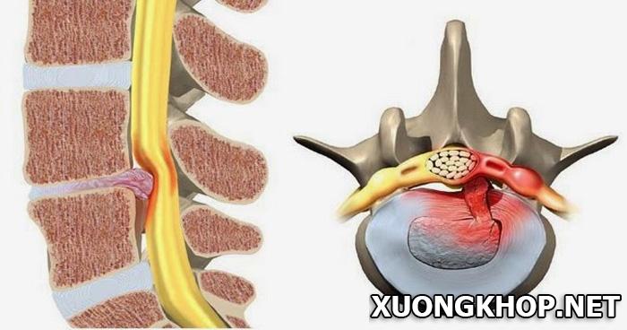 Điều trị thoái hóa đĩa đệm cột sống thắt lưng 1