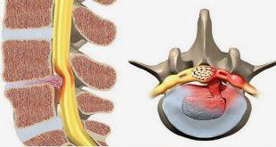 Điều trị thoái hóa đĩa đệm cột sống thắt lưng