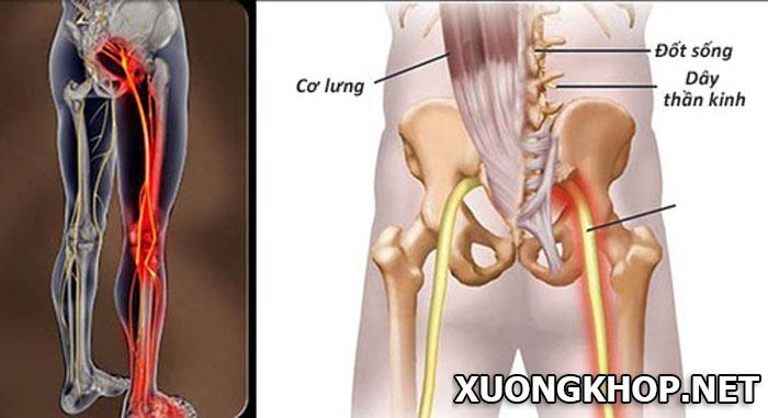 Điều trị thoát vị đĩa đệm cột sống thắt lưng L4 – L5 1