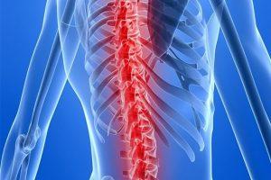 Giới thiệu tổng quan về bệnh lao xương khớp là gì? Nguyên nhân? Điều trị
