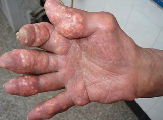 Hạt Tophi bệnh gout là gì và có thể loại bỏ chúng bằng những cách nào 1