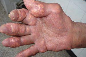 Hạt Tophi bệnh gout là gì và có thể loại bỏ chúng bằng những cách nào
