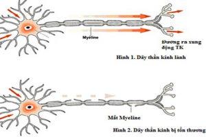 Hậu quả khôn lường của bệnh thoát vị đĩa đệm cột sống thắt lưng