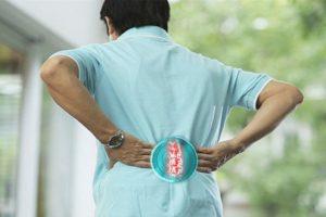 Hình ảnh X quang thoái hóa cột sống thắt lưng và một số tiêu chuẩn chẩn đoán