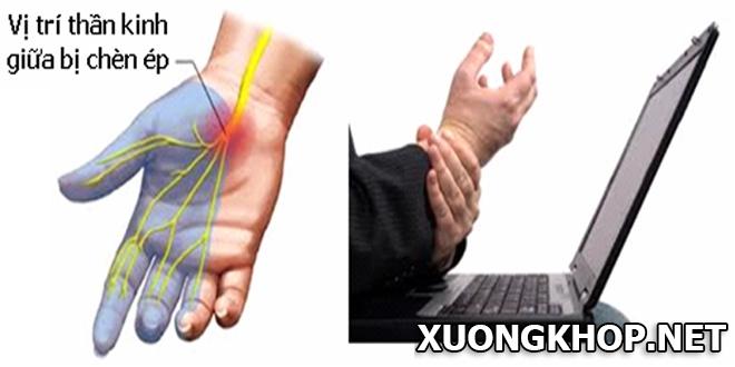 Một số nguyên nhân của bệnh viêm khớp ngón tay bạn cần biết