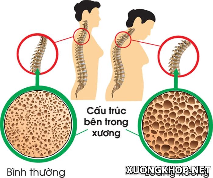 Nguyên nhân bệnh vôi hóa cột sống cổ là gì? Cách điều trị vôi hóa cột sống cổ như thế nào? 1