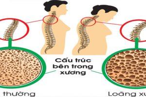 Nguyên nhân bệnh vôi hóa cột sống cổ là gì? Cách điều trị vôi hóa cột sống cổ như thế nào?