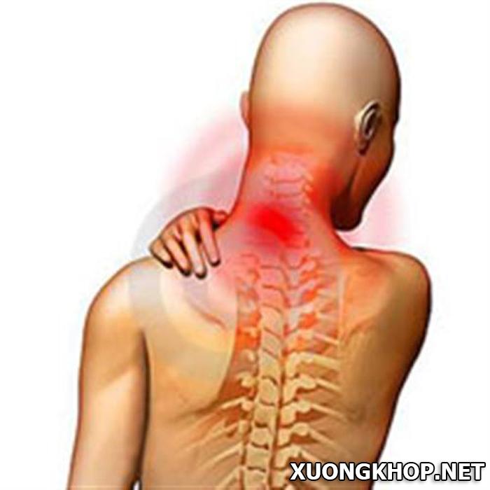 Nguyên nhân và triệu chứng gây ra thoát vị đĩa đệm cột sống cổ. 2