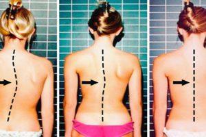 Những hậu quả của bệnh vôi hóa cột sống khiến bạn không thể ngờ