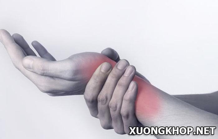 Thoái hóa khớp cổ tay, bệnh không thể coi thường 1