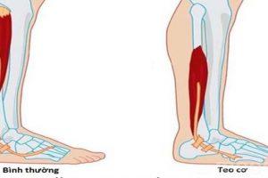 Tìm hiểu nguyên nhân tại sao thoát vị đĩa đệm gây tê chân?