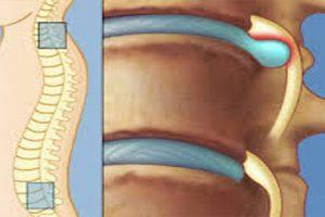 Tìm hiểu về bệnh thoát vị đĩa đệm nhiều tầng cột sống thắt lưng