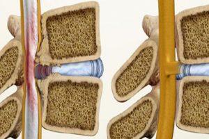 Tìm kiếm những nguyên nhân chính dẫn đến bệnh vôi hóa cột sống 1