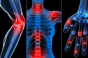Tổng hợp các bệnh xương khớp thường hay gặp ở trẻ em và thông tin bổ ích