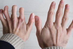 Triệu chứng của bệnh viêm đa khớp dạng thấp và cách điều trị bệnh hiệu quả