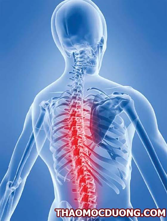 Triệu chứng của lao cột sống và hướng dẫn chuẩn đoán cùng cách chữa trị 1