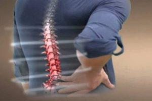 Triệu chứng và cách chữa vôi hóa cột sống phù hợp nhất, hiệu quả nhất
