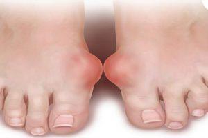 Hỏi đáp: Viêm khớp bàn ngón chân là bệnh gìvà cách điều trị bệnh hiệu quả