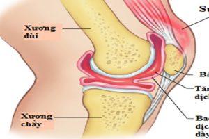 Viêm khớp gối có dịch nguyên nhân và cách điều trị