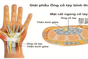 3 nguyên nhân gây viêm khớp cổ tay bạn không thể bỏ qua