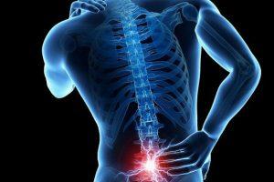 Bệnh gai cột sống và cách chữa trị được nhiều người áp dụng hiệu quả