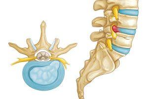 Bệnh thoát vị đĩa đệm những nguyên nhân cơ bản và cách điều trị