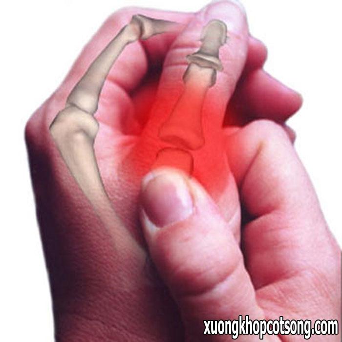 Bệnh viêm đa khớp dạng thấp có thể gây tàn phế và tử vong 1