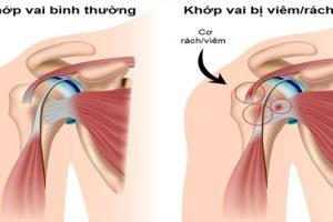Bệnh viêm quanh khớp vai thể đông cứng - Biểu hiện và cách chữa bệnh