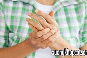 Biểu hiện thường thấy của bệnh viêm đa khớp dạng thấp