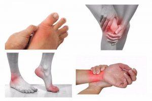 Các phương pháp chữa bệnh đau khớp thông dụng