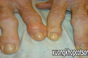 Đau khớp các ngón tay là bị bệnh viêm khớp dạng thấp hay bệnh gout