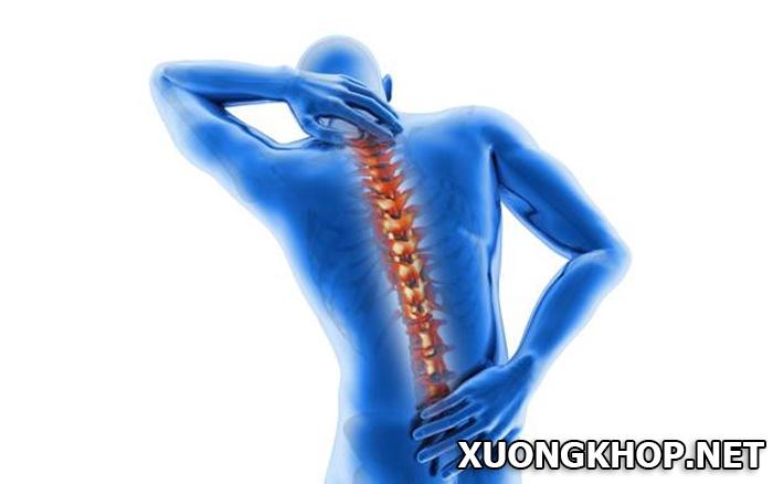 Đau lưng dọc cột sống nguyên nhân do đâu? Cách điều trị như thế nào? 1