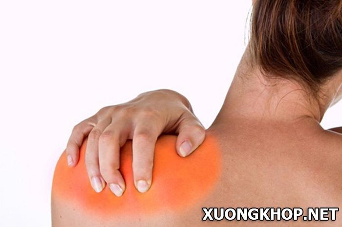 Đau lưng gần vai- Dấu hiệu của những căn bệnh bạn có thể đang mắc phải. 1