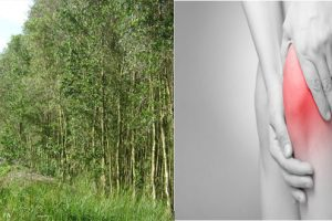 Điều trị thoái hóa khớp gối không tái phát bằng cây bạch đàn