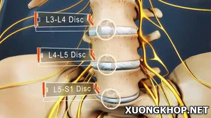 Gai cột sống s1 là gì? Triệu chứng và cách điều trị 1
