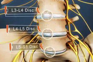 Gai cột sống s1 là gì? Triệu chứng và cách điều trị
