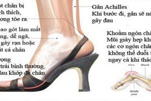Giày cao gót - Thủ phạm gây đau gai cột sống ở phụ nữ