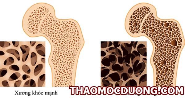 Nguy cơ loãng xương dựa vào chỉ số OSTA và các phương pháp đo mật độ xương ( Phần 1 ) 1