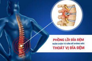 Nguyên nhân, triệu chứng thường gặp của bệnh phồng đĩa đệm