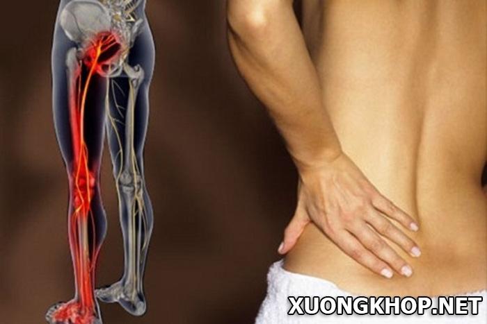 Nguyên nhân và cách ngăn ngừa chứng bệnh đau lưng dưới bên trái. 2
