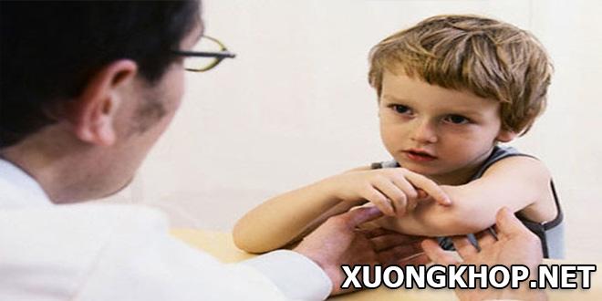 Những dấu hiệu của bệnh viêm khớp trẻ em bố mẹ cần hết sức chú ý