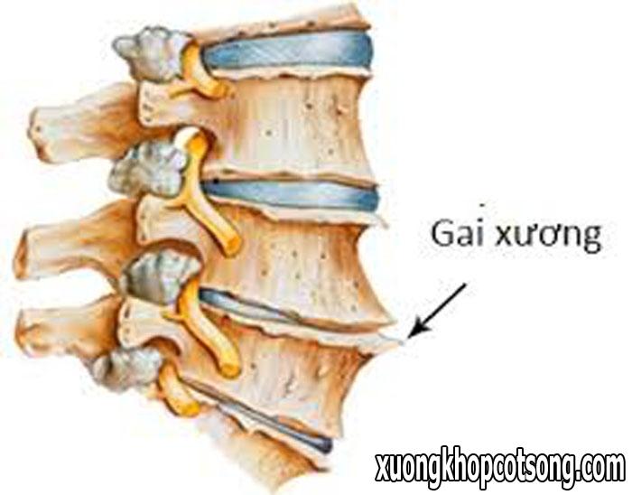 Những điều cần biết về bệnh gai cột sống thắt lưng