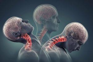 Phương pháp hạn chế chấn thương cột sống cổ mọi người cần biết
