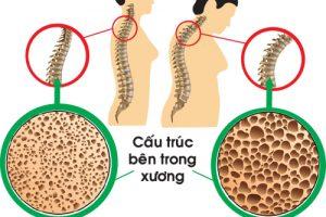 Sinh lý bệnh loãng xương và điều trị theo y học hiện đại