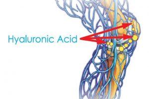 Tiêm Axit hyaluronic vào khớp thoái hóa có tốt hay không